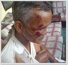 kecederaan kemalangan jalanraya