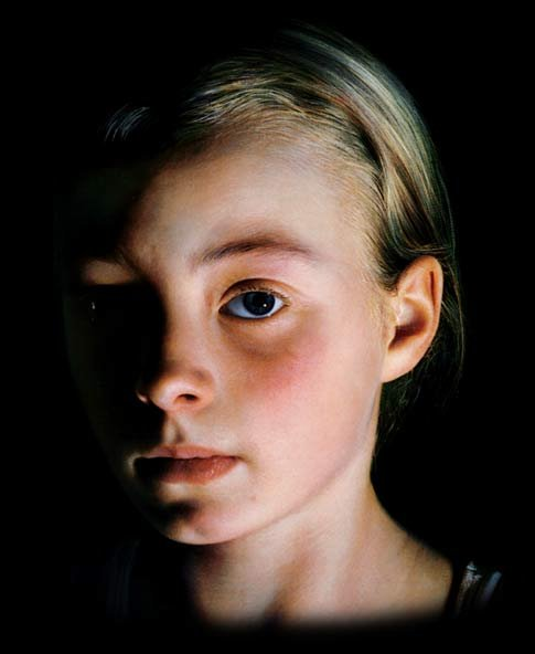 Helnwein_girl