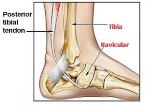 Posterior Tibial Tendon Disfonksiyonu