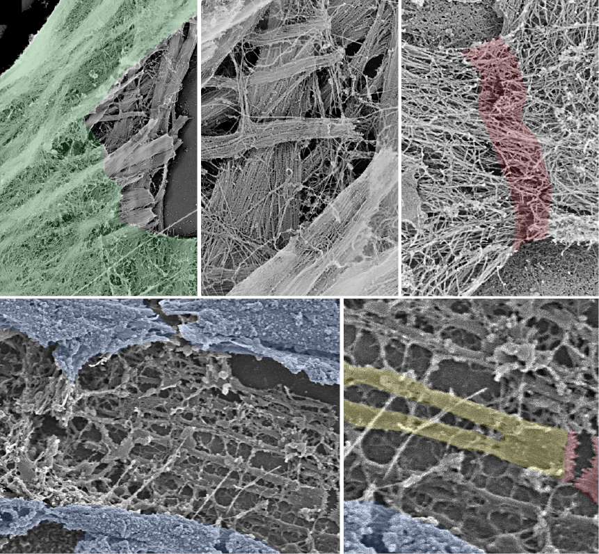 Platinum replica (top) and scanning (bottom) electron microscopy images of neonatal cardiomyocytes.