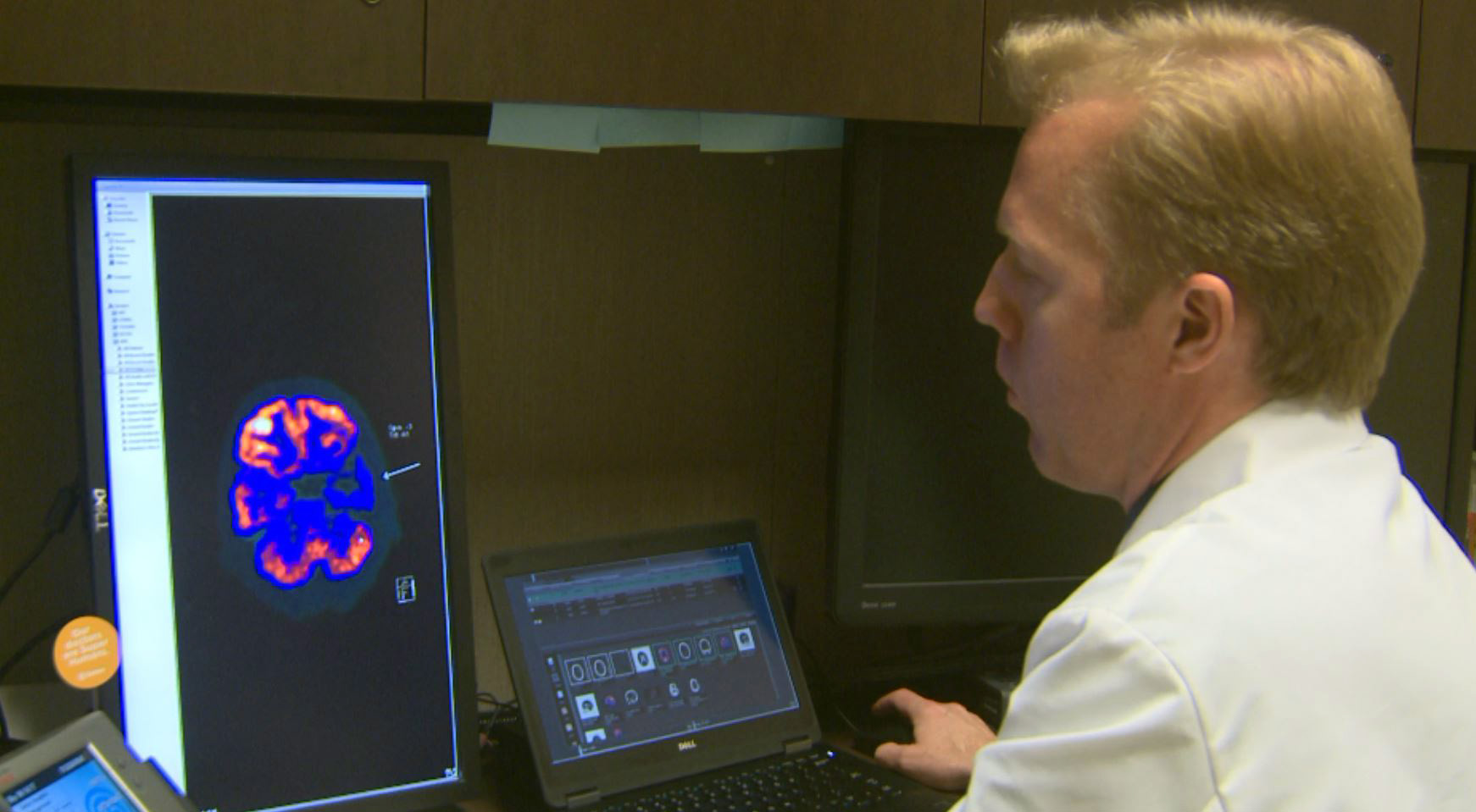 Dr. John Bertelson looking at a brain scan of an Alzheimer's patient. (KXAN Photo)_489267