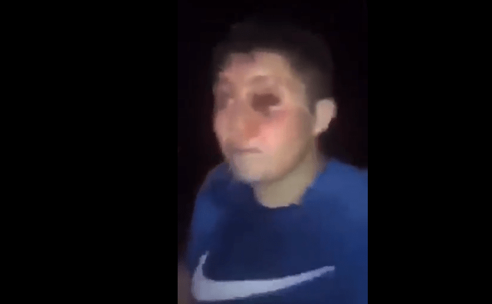 Sorry, this man did not eat his eye at We Fest