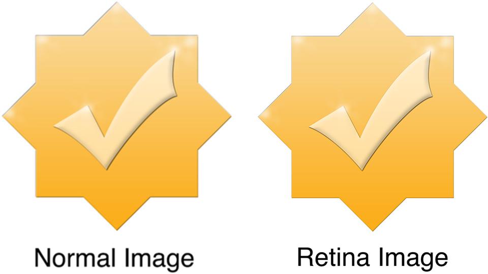 retina image comparison