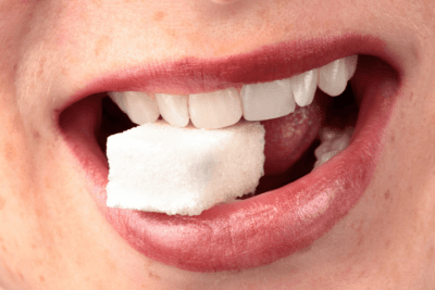 One of the benefits of coconut oil is preventing tooth decay