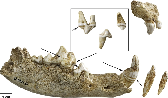 Puppy Teeth with Canine Distemper Traces