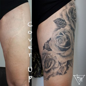 Cover up with roses of a skin transplation scar