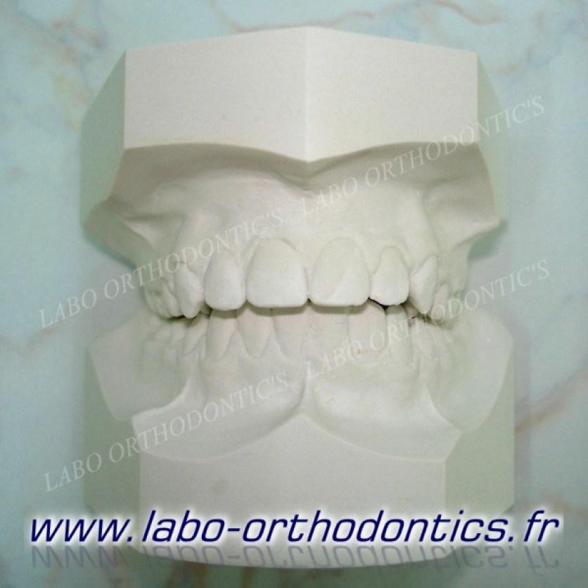 moulage orthodontie