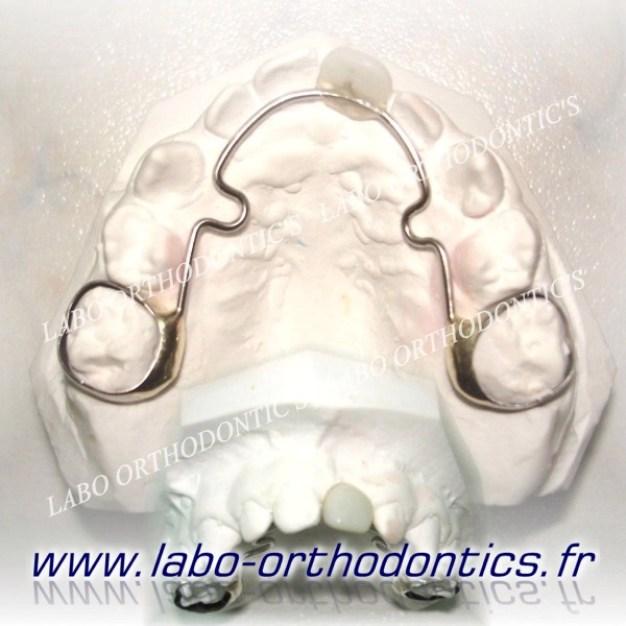 dent prothétique sur bagues
