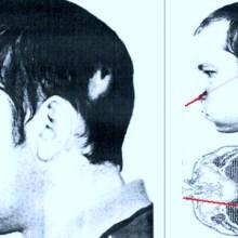 Anatoli Bugorski a mis sa tête dans un accélérateur de particules