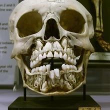 Crâne d'un enfant avec ses dents de lait et définitives
