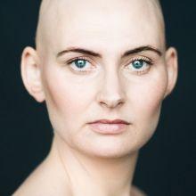 l'alopécie féminine en portraits
