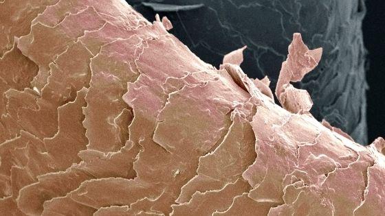 Image de miscroscope électronique montrant un cheveu abîmé