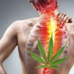 Estratti di Cannabis e mal di schiena