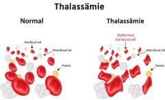 Thalassämie