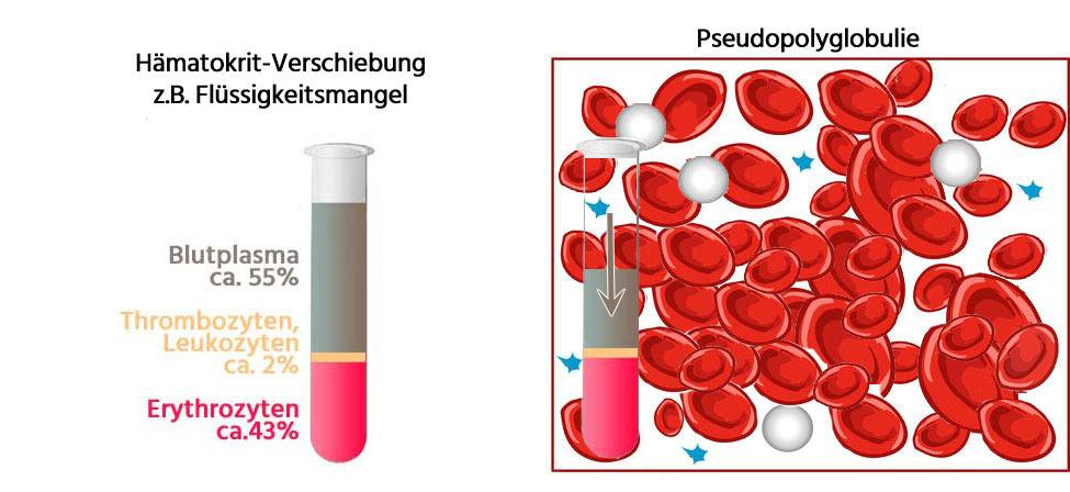 Pseudopolyglobulie Details