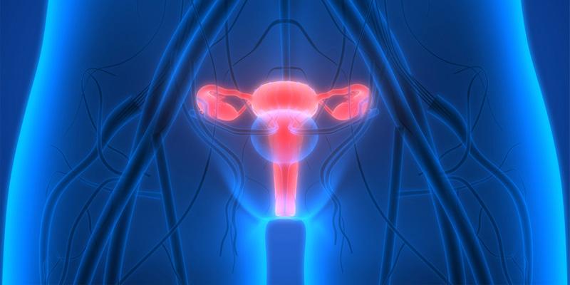 Endometriose frühzeitig erkennen