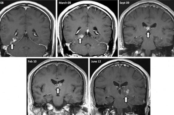 Parasito cerebro