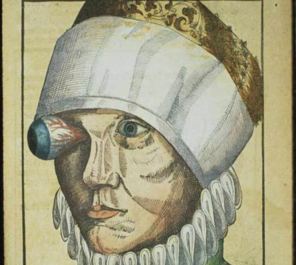 LaBrujulVerde-Ophthalmodouleia