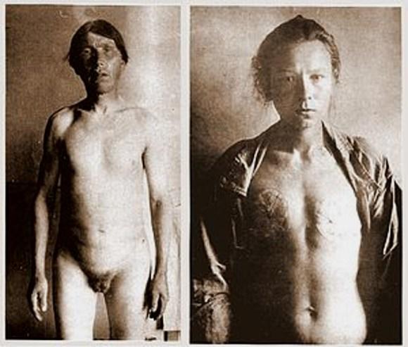 Un hombre y una mujer de los skoptsy mutilados