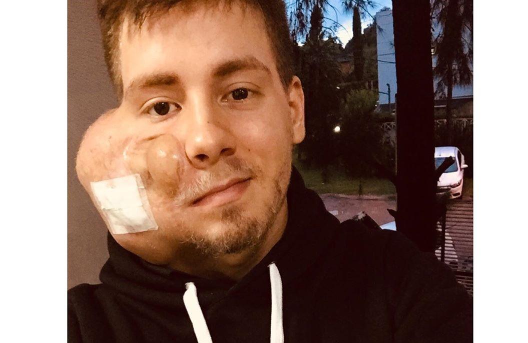 Un joven desesperado busca ayuda para poder viajar a Mendoza y ser operado de un tumor