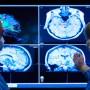 Neurochirurgo Pinerolo