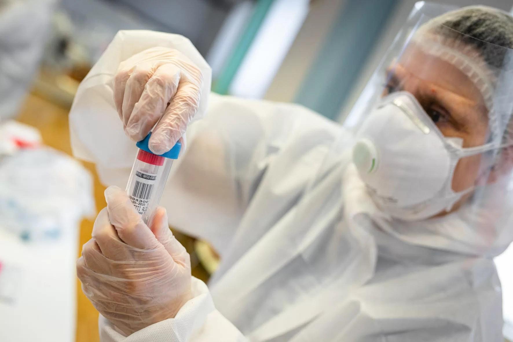 test sierologici regione lazio