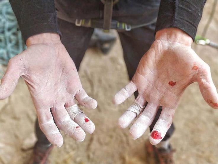 Stefano Ghisolfis Finger leiden unter den messerscharfen Leisten von La Capella
