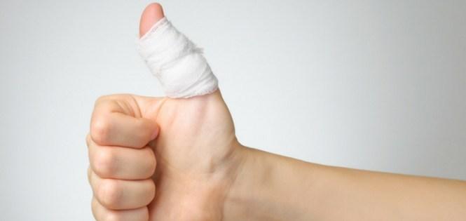 Treatment Of Broken Finger Or Fractured
