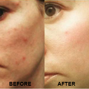 Repechage Rapidex Before & After
