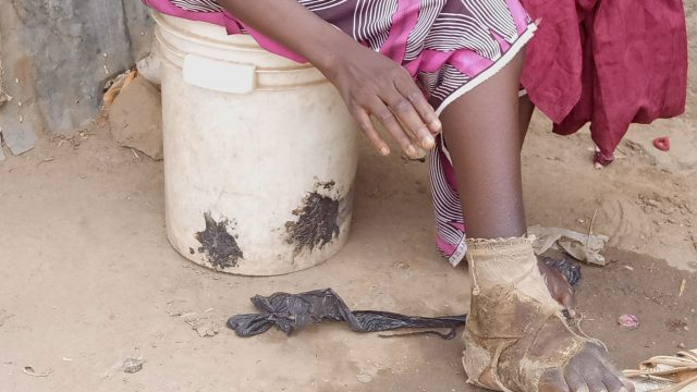 Nigeria records 20,000 cases of snake bites annually – Minister