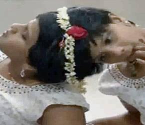 India, gemelle siamesi adottate da ospedale festeggiano 14 anni2