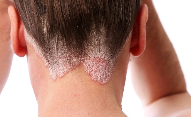 8 Possible Causes Of Hair Loss In Women Lady Care Health