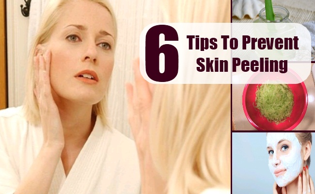 Tips To Prevent Skin Peeling