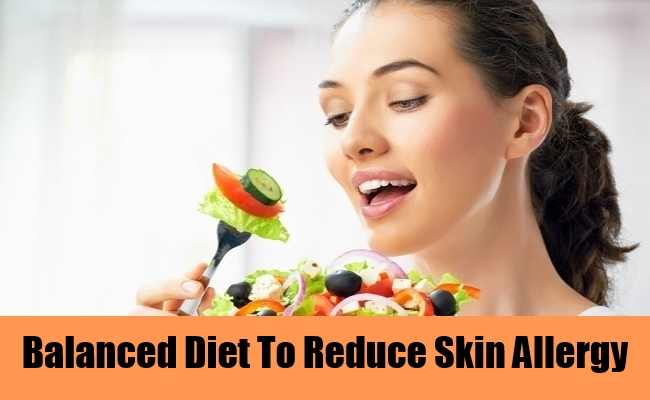 Balanced Diet To Reduce Skin Allergy