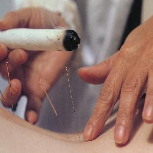 How To Treat Menstrual Cramps With Moxibustion