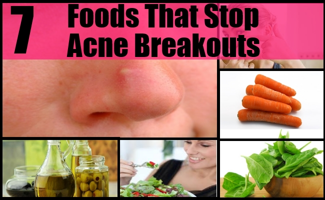 Foods That Stop Acne Breakouts