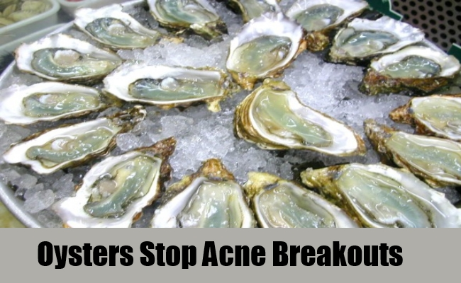 Oysters Stop Acne Breakouts