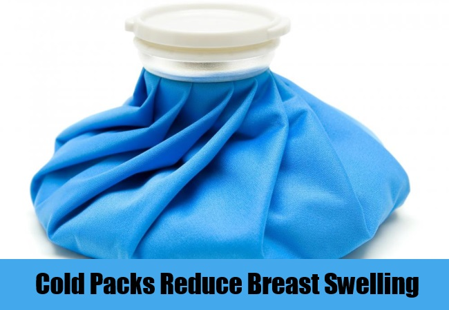 Cold Packs Reduce Breast Swelling