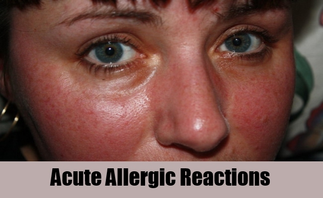 flu shot allergic reactions in adults