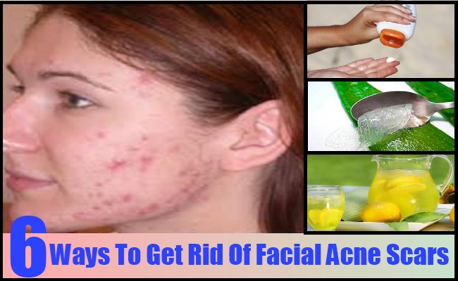 get rid of facial acne
