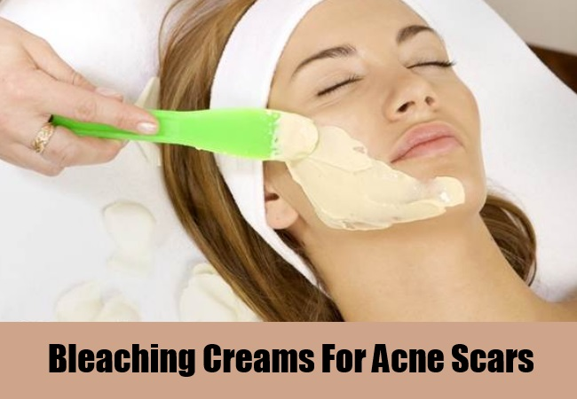Bleaching Creams For Acne Scars