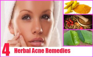 Herbal Acne Remedies