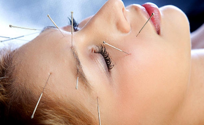 Results of Acupuncture