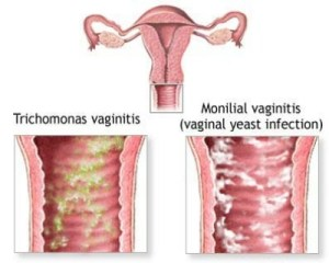 How To Avoid Having Bacterial Vaginitis
