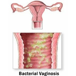Common Home Remedies For Bacterial Vaginosis Lady Care Health
