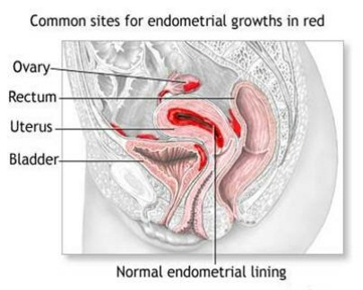 Natural Treatment For Endometriosis