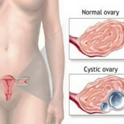 Natural Way To Ovarian Cyst Pain Relief
