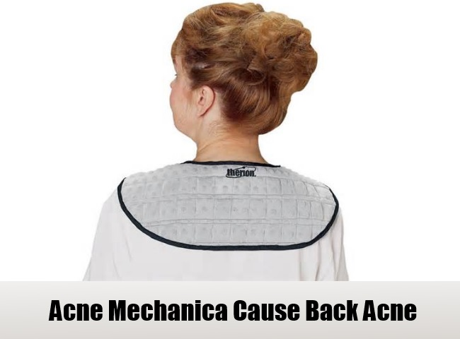 Acne Mechanica