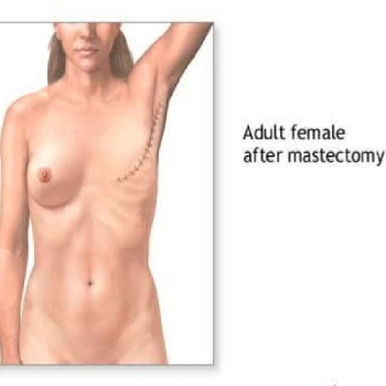 Mastectomy Breast Reconstruction Surgery