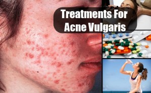 Treatments For Acne Vulgaris